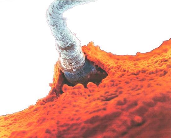 nochyu-nekontroliruemiy-vibros-spermi