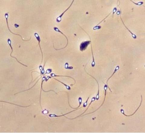 sperma-s-defektom-golovki