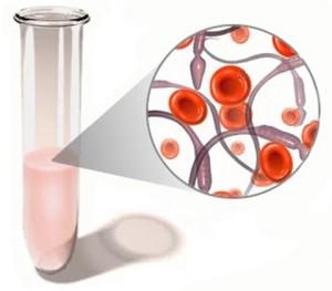Олигоастенозооспермия, симптоматика, лечение