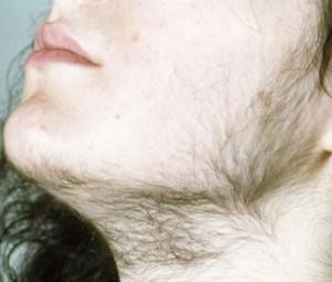 Рост волос по мужскому типу