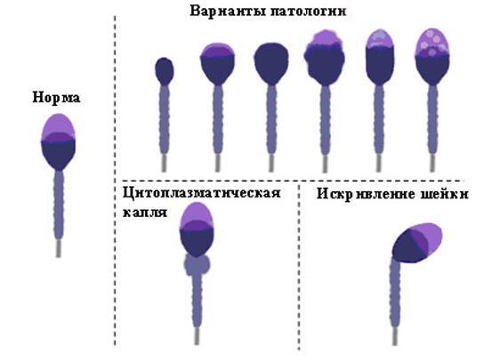 На что влияет патология сперматозоидов