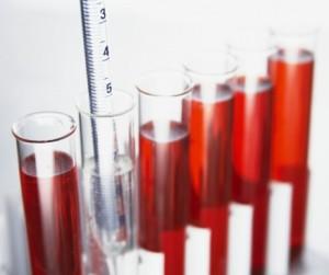 Перед процедурой необходим анализ крови