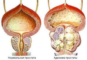Аденома простаты влияет на качество спермы