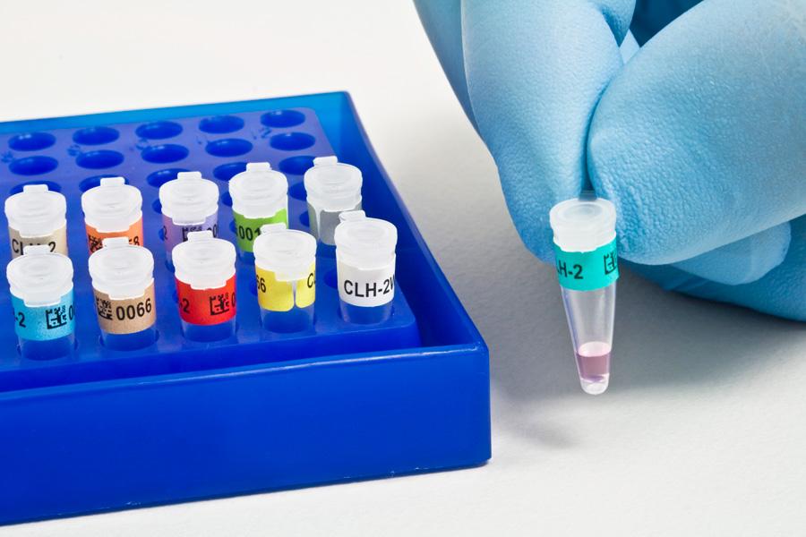 анализы на скрытые инфекции у женщин список